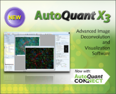 AutoQuant X3 Software