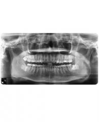 Oral/Wisdom Tooth Surgery