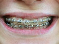 Orthodontics/Braces