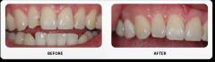 Dentamorphosis